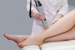 Điều trị viêm nang lông bằng phương pháp laser