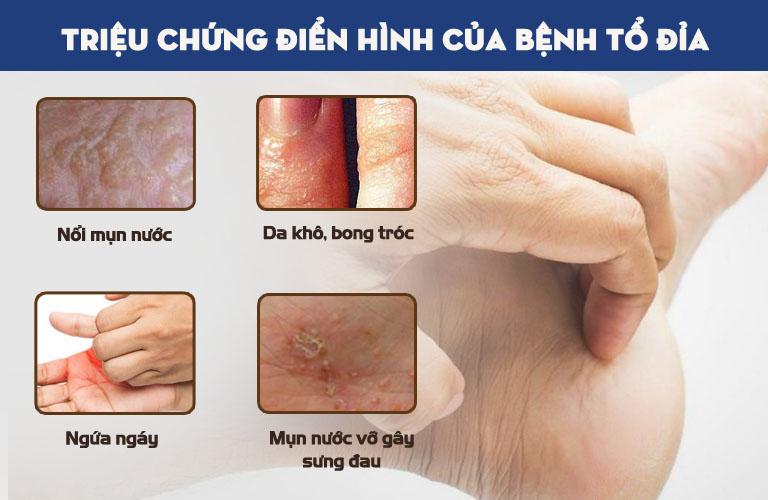 Triệu chứng điển hình của bệnh tổ đỉa
