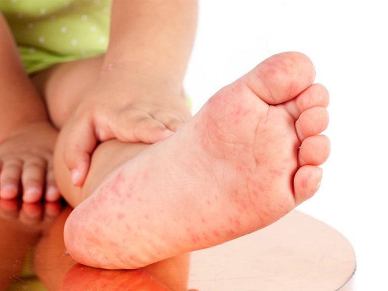 Triệu chứng viêm da cơ địa ở chân trẻ em
