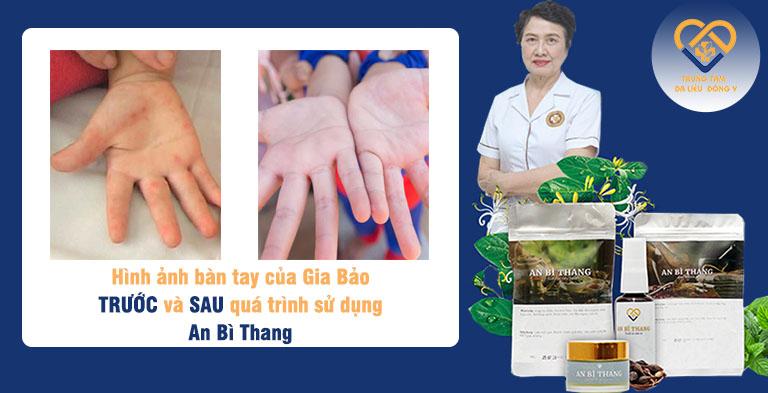 Bàn tay bị viêm da cơ địa của bé Gia Bảo vào năm 4 tuổi, trước khi dùng bài thuốc An Bì Thang và đôi tay với làn da mềm mại ở hiện tại