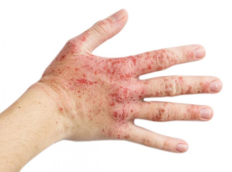 Viêm da cơ địa ở tay là hiện tượng trên cánh tay, bàn tay, ngón tay xuất hiện những vết mẩn đỏ, tróc da, nổi sần