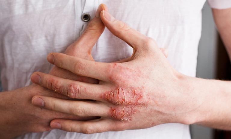 Viêm da tiếp xúc cũng là nguyên nhân gây bệnh