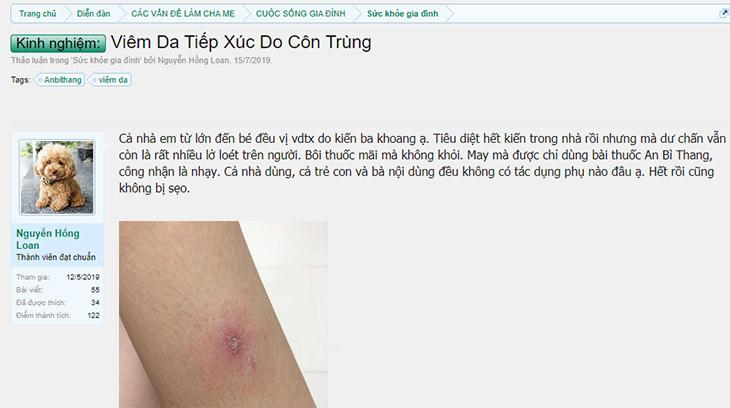 Bạn Nguyễn Hồng Loan chia sẻ kinh nghiệm điều trị viêm da tiếp xúc do côn trùng không để lại sẹo trên Lamchame