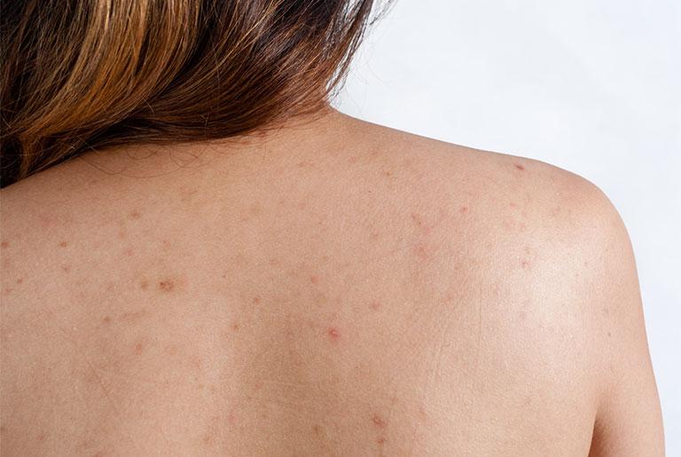 Viêm nang lông là nguyên nhân dẫn đến ngứa lưng thường gặp nhất