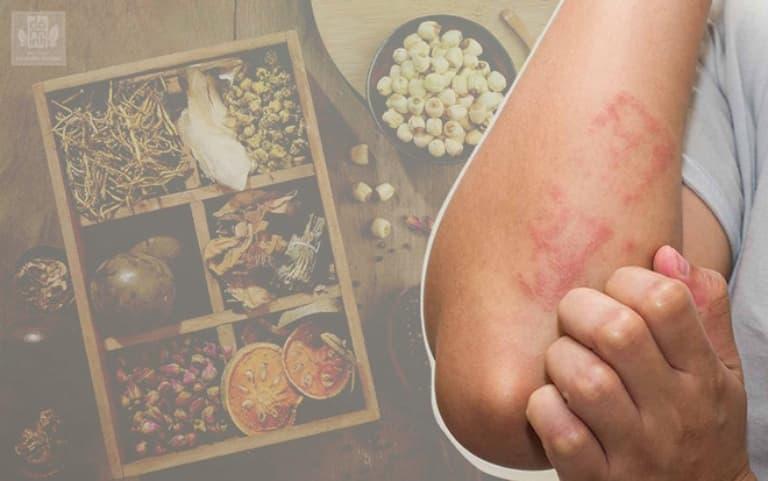 Áp dụng các bài thuốc đông y trong chữa ngứa