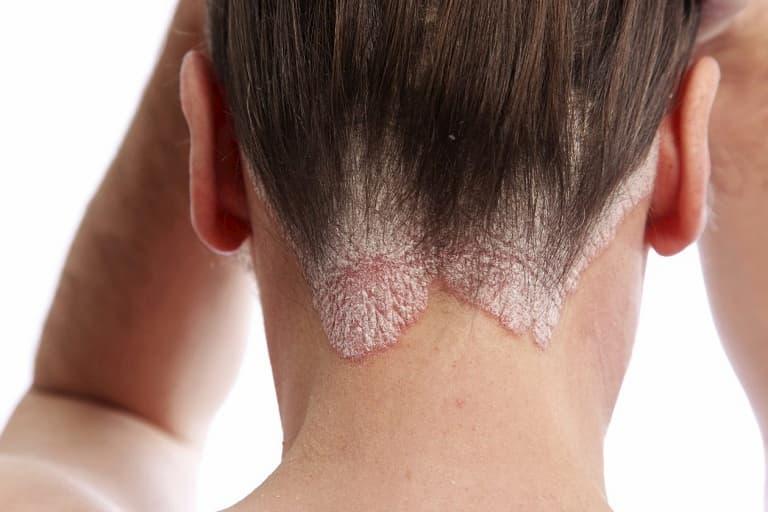 Bệnh á sừng da đầu là gì?