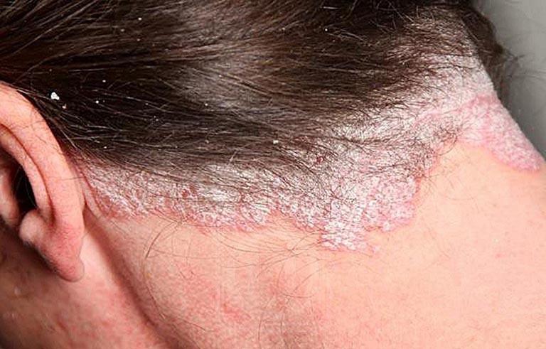 Bệnh á sừng da đầu nguyên nhân và cách chữa