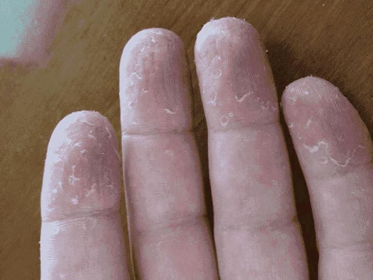 Bệnh có thể chữa được dứt điểm nếu tuân theo phác đồ điều trị nghiêm ngặt