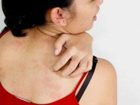 Bệnh vảy nến có tự khỏi không - cách phòng tránh bệnh