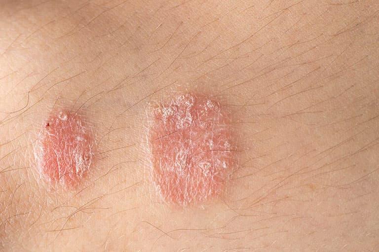 Bệnh vảy nến cũng được xác định là một trong những nguyên nhân gây ngứa mu bàn chân