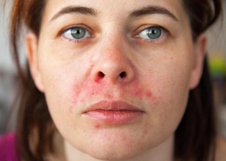 Bệnh viêm da tiết bã có nguy hiểm không