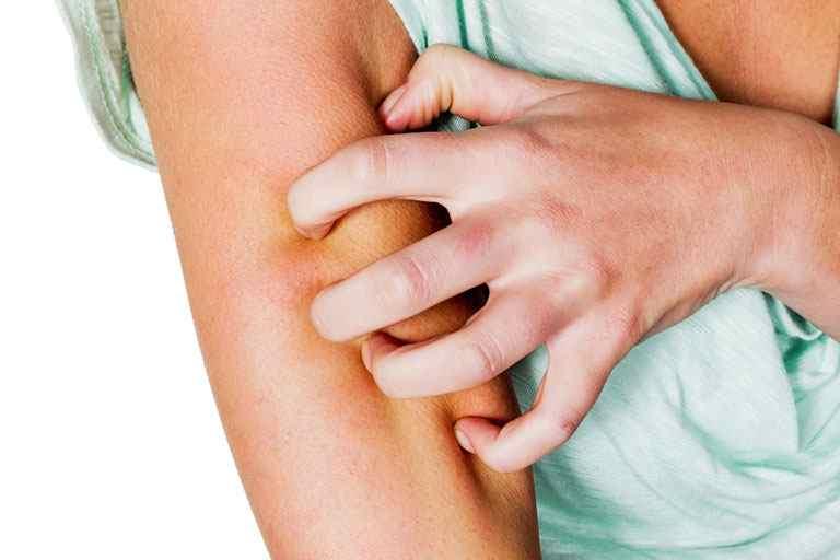 Bị nổi mề đay cần kiêng gì - Người bệnh tuyệt đối không được cào gãi vào vùng da bị tổn thương