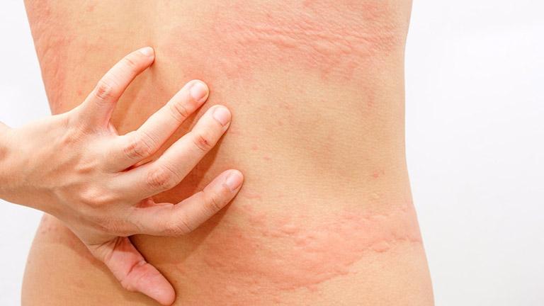 Cách trị ngứa da toàn thân hiệu quả, an toàn