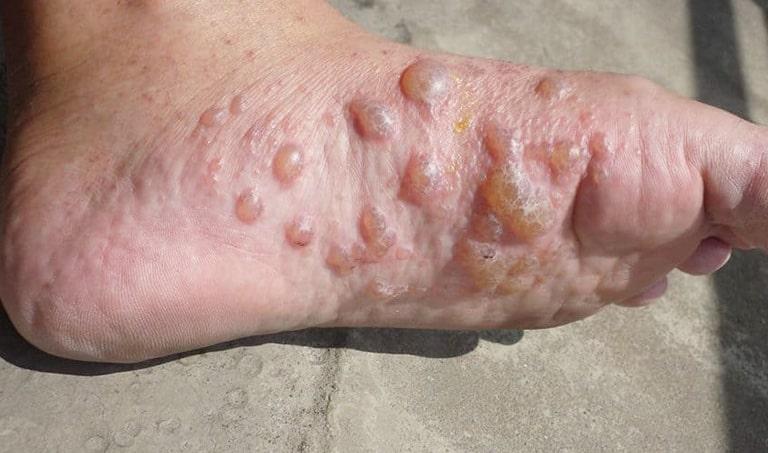 Chàm tổ địa một bệnh thường gây ngứa ở chân