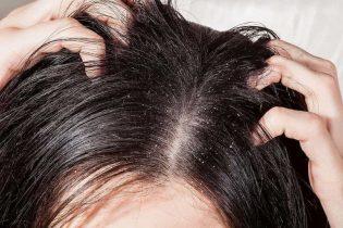 Da đầu ngứa có vảy trắng do đâu