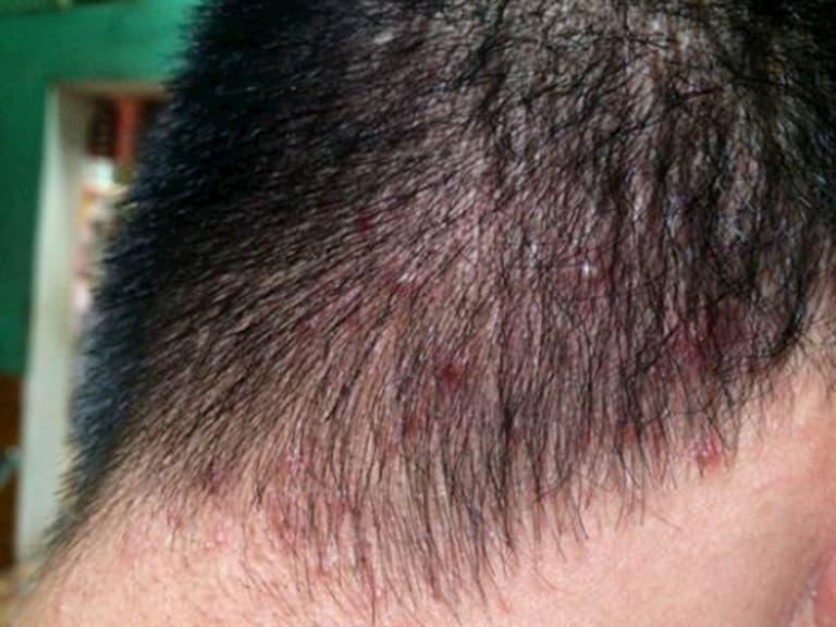 Dấu hiệu viêm da dầu ở đầu là da mẩn đỏ, ngứa và nổi mụn nước