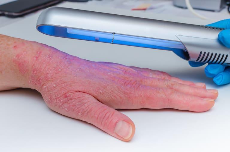 Dùng quang trị liệu trong điều trị vảy nến