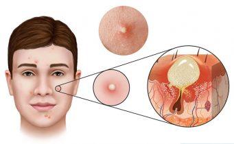 Mụn mủ trắng là gì? Nguyên nhân và cách điều trị an toàn không để lại sẹo