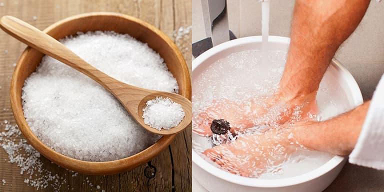 Ngâm chân nước muối pha loãng giúp giảm ngứa hiệu quả