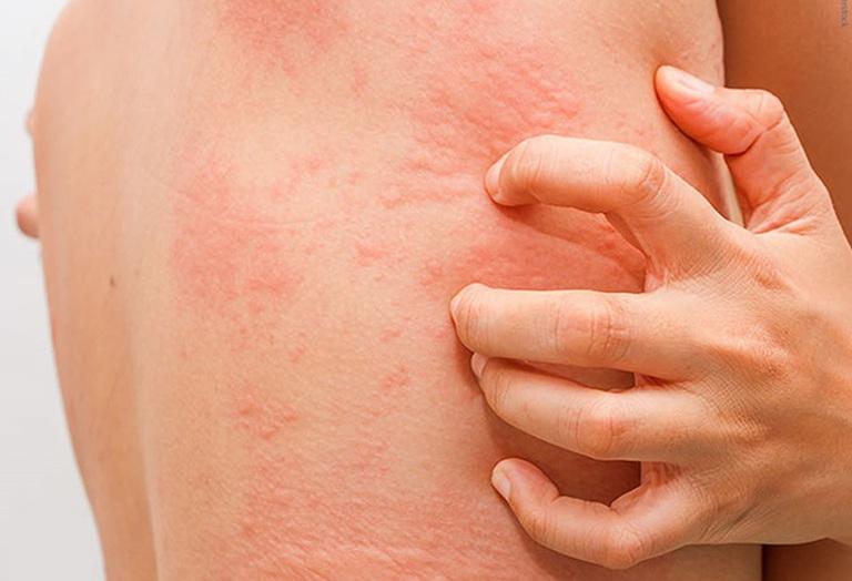 Ngứa da toàn thân là bệnh gì