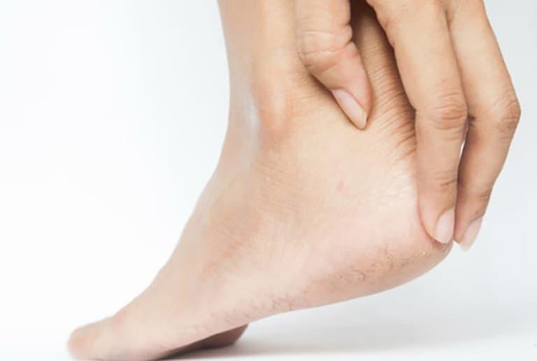 Ngứa gót chân là bệnh gì