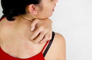 Ngứa lưng- nguyên nhân và cách điều trị