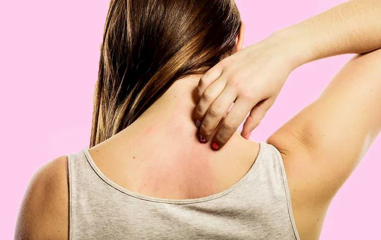 Ngứa lưng sẽ gây ngứa ngáy khó chịu đôi khi nổi mẩn