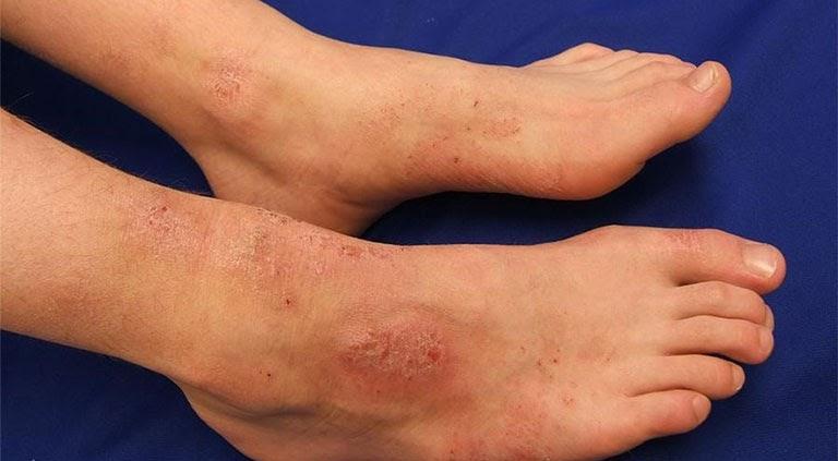 Ngứa mu bàn chân không ảnh hưởng tới tinh mạng nhưng ảnh hưởng tới tinh thần, sức khỏe người bệnh