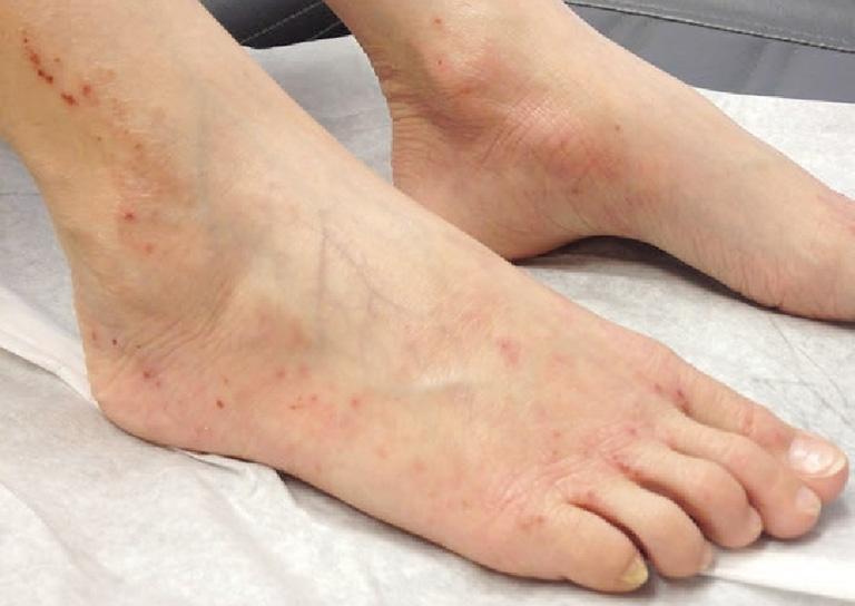 Ngứa mua bàn chân là bệnh gì