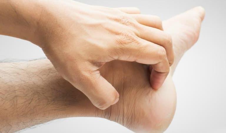Ngứa mua bàn chân - nguyên nhân và cách điều trị