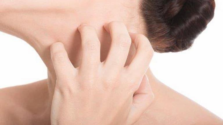 Ngứa vùng cổ nguyên nhân và cách điều trị