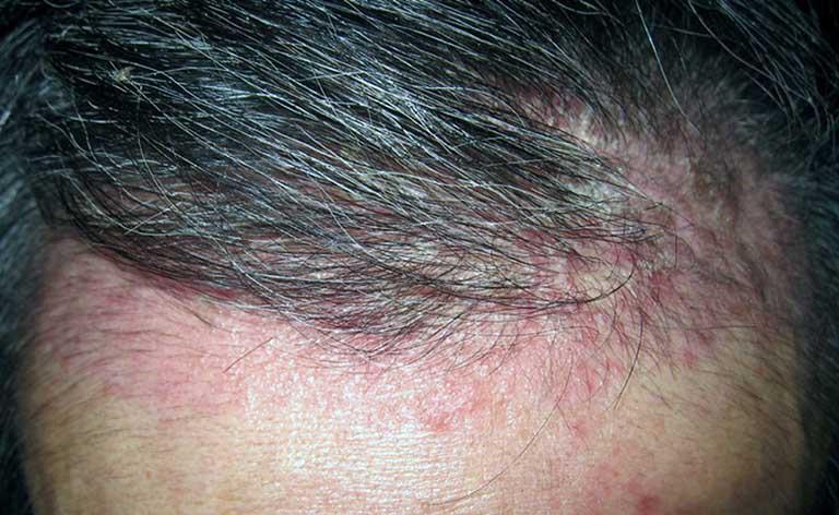 Nguyên nhân dẫn đến viêm da dầu ở đầu là gì