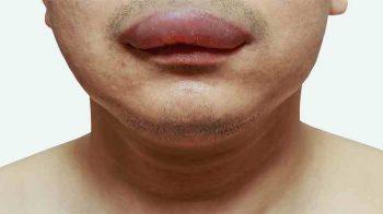 Nổi mề đay sưng môi