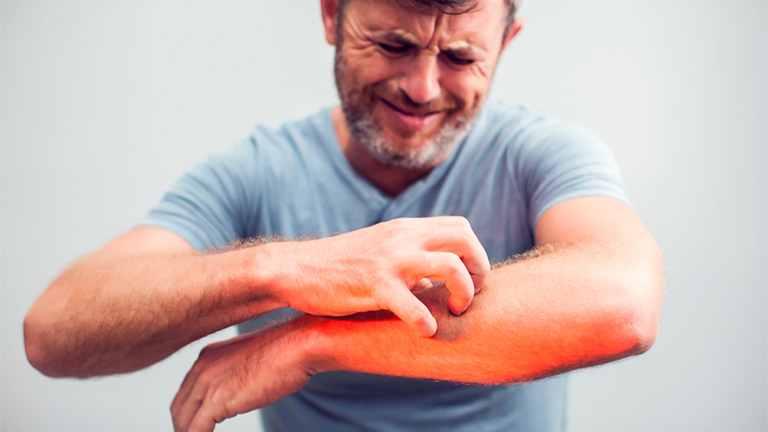 Tình trạng ngứa ngáy khó chịu ảnh hưởng rất lớn đến cuộc sống và sinh hoạt của người bệnh
