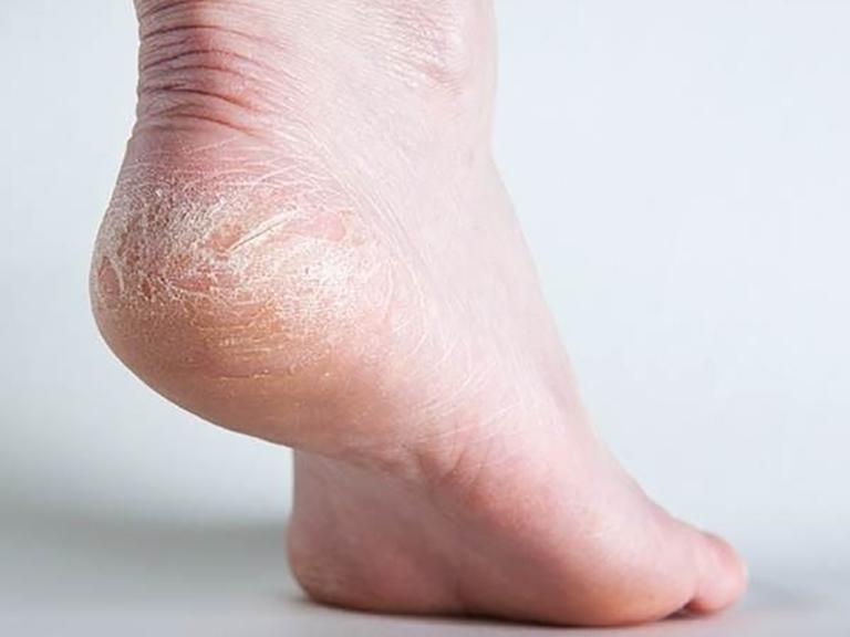 Người bệnh cần lưu ý chăm sóc da để áp dụng các cách chữa bệnh á sừng ở chân hiệu quả