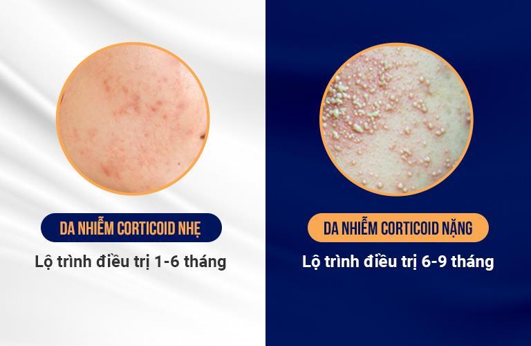 Lộ trình điều trị da nhiễm Corticoid cho trường hợp nhẹ và nặng