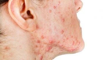 Vùng da bị mụn bọc gây đau nhức và dễ thành sẹo