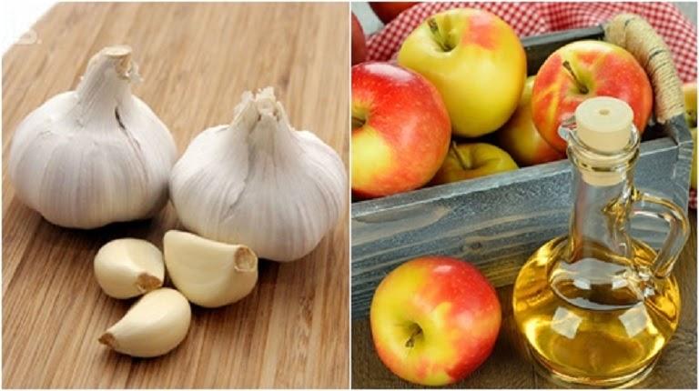 Hỗn hợp tỏi tươi và giấm táo khiến nhân mụn mau khô, nhanh lành