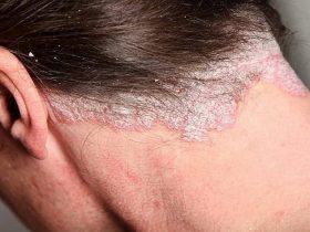 Các mảng bong tróc, có màu trắng bạc xuất hiện trên da và phân rõ ranh giới với các vùng khác