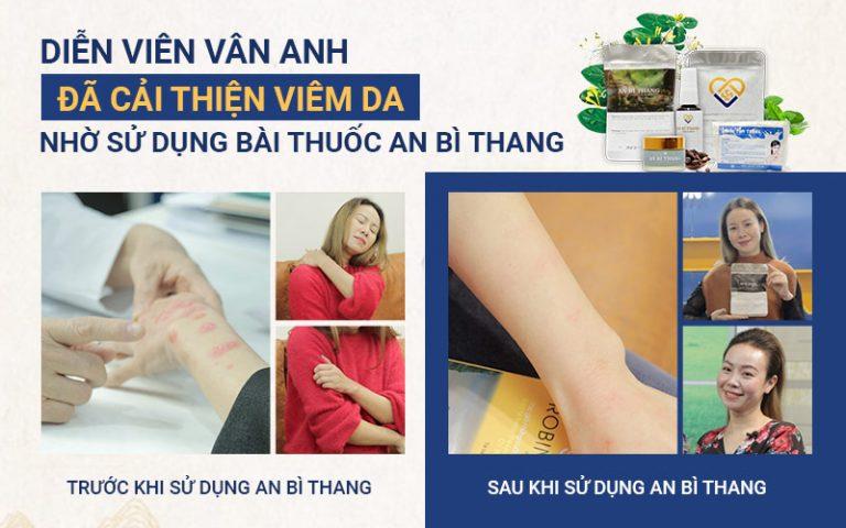 Các triệu chứng tổn thương trên da của nữ diễn viên phục hồi hoàn toàn sau 1 liệu trình 4 tháng