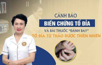 Bác sĩ Nguyễn Thị Nhuần cảnh báo biến chứng tổ đỉa