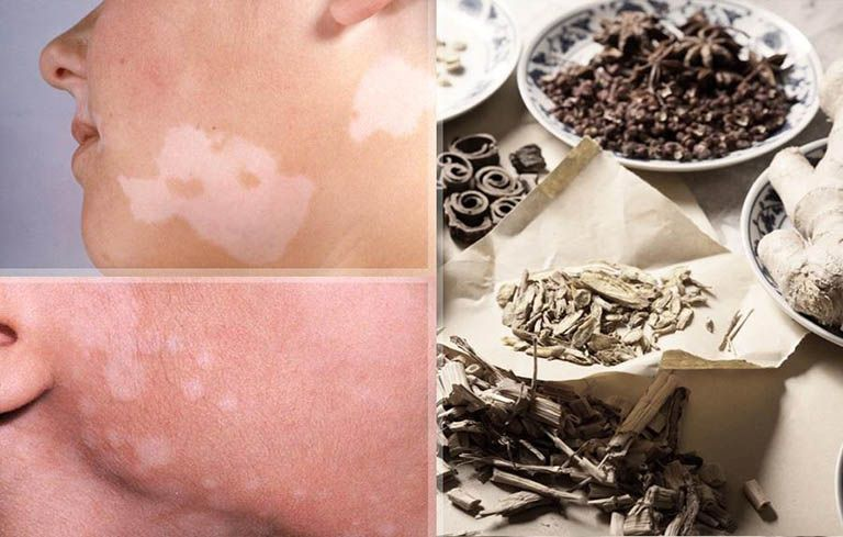 Một số thuốc Đông y trị bệnh lang ben