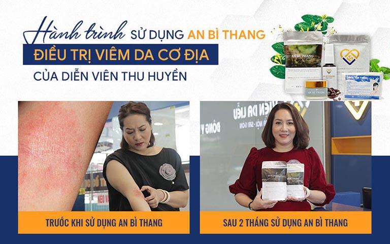 Diễn viên Thu Huyền TRƯỚC - SAU 2 tháng sử dụng An Bì Thang điều trị viêm da
