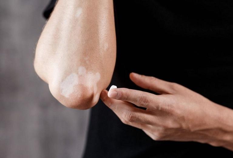 Trị lang ben: Những mẹo hay không cần thuốc có thể chữa khỏi tại nhà