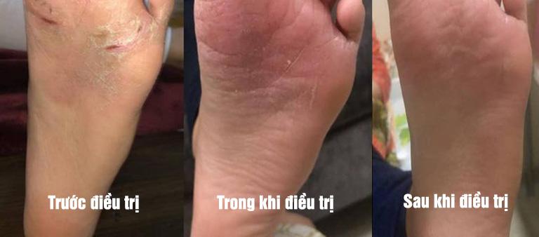 Làn da dần cải thiện sau 3 tháng điều trị vảy nến bằng An Bì Thang