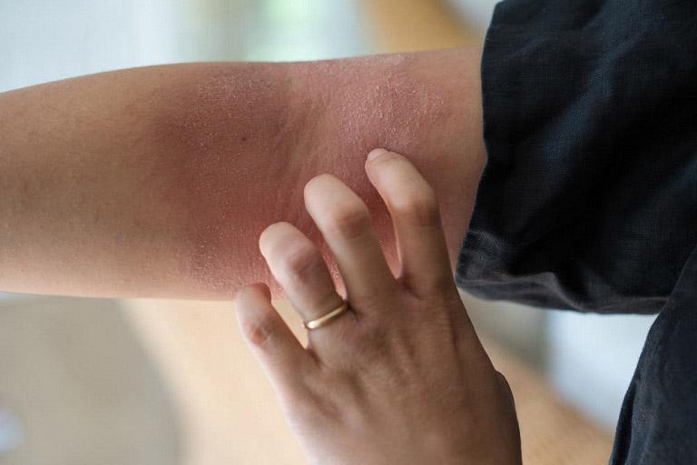 Mẹ bỉm sữa bắt đầu có những triệu chứng của viêm da cơ địa sau sinh, bắt đầu từ vùng da dưới cánh tay