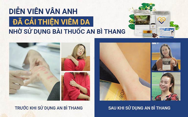 Những triệu chứng viêm da tiếp xúc của diễn viên Vân Anh gần như biến mất hoàn toàn