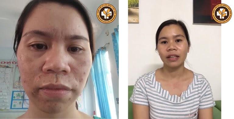 Tình trạng da mặt chị Nụ trước và sau khi điều trị nám da và mụn bằng Vương Phi