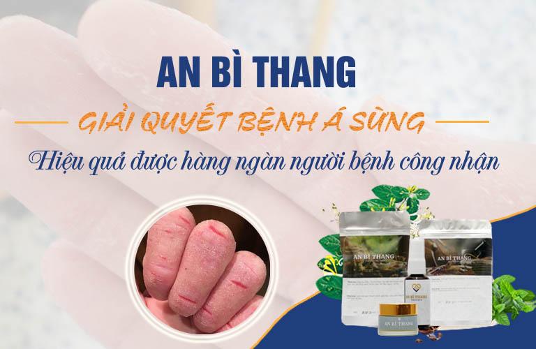 An Bì Thang giải quyết bệnh á sừng
