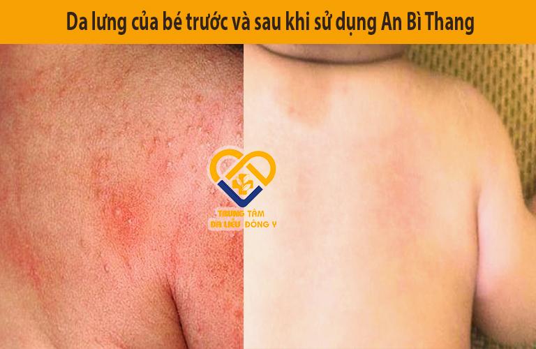 Da lưng bé trước và sau khi điều trị viêm da cơ địa bằng An Bì Thang